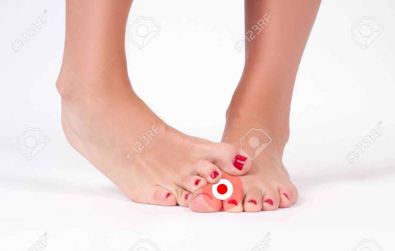 Foot Fungus. Beauty And Foot Care. Female Feet On White Background ...