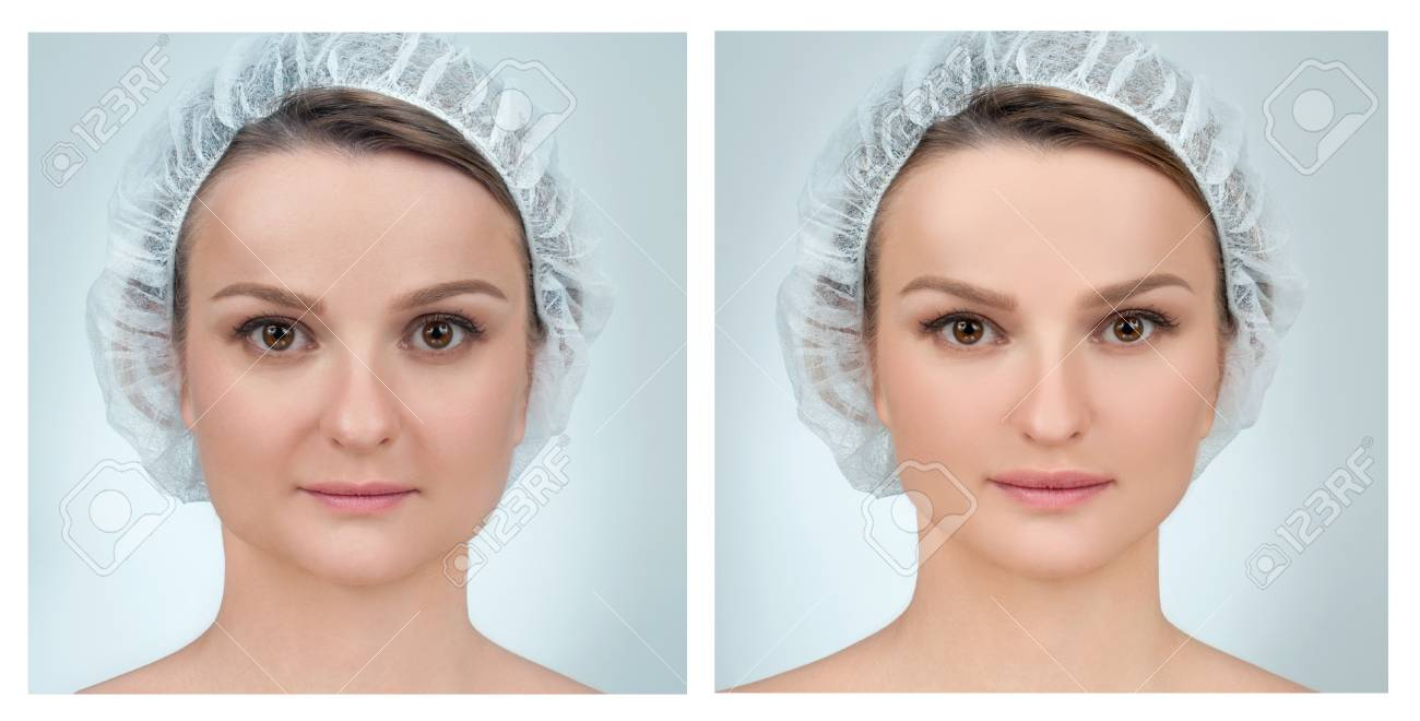 Portrait Of Female Face Before And After Plastic Surgery Anti