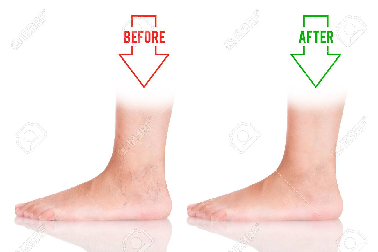 Varicose On The Foot Variants Of Varicose Before And After Stock