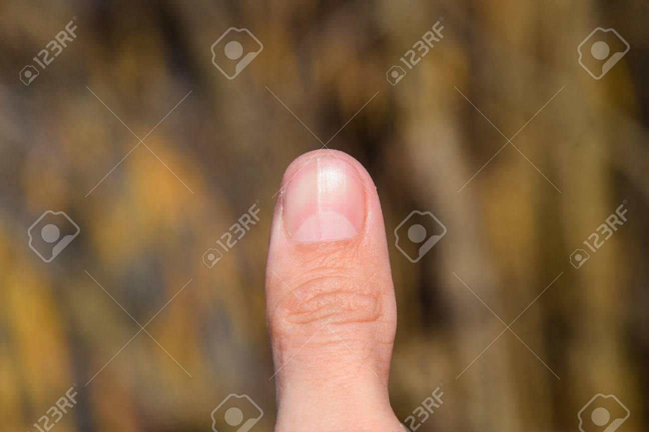 Forked Nail On The Thumb. Dilation Of The Nail, Traumatic Pathology ...