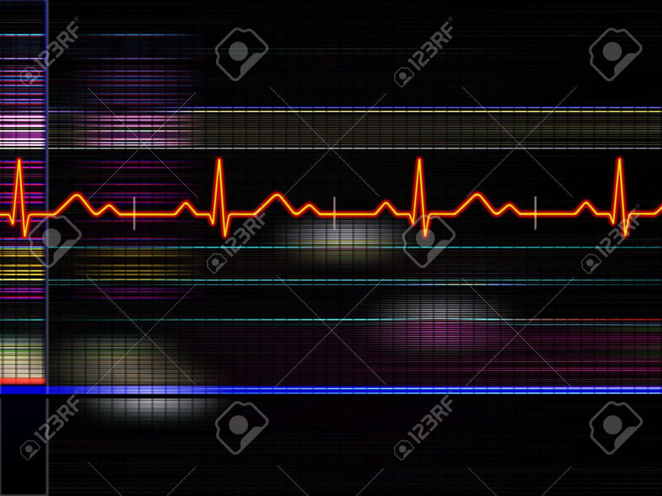 Cardiogram background Stock Photo - 356823