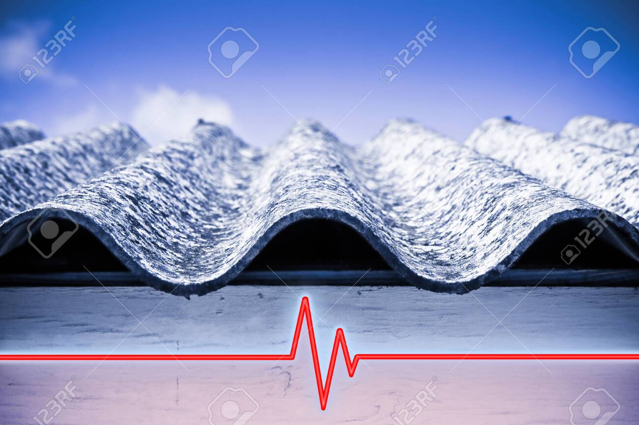 Test on the presence of asbestos in the construction materials of buildings - concept image with check-up chart about asbestos level testing - 123977495