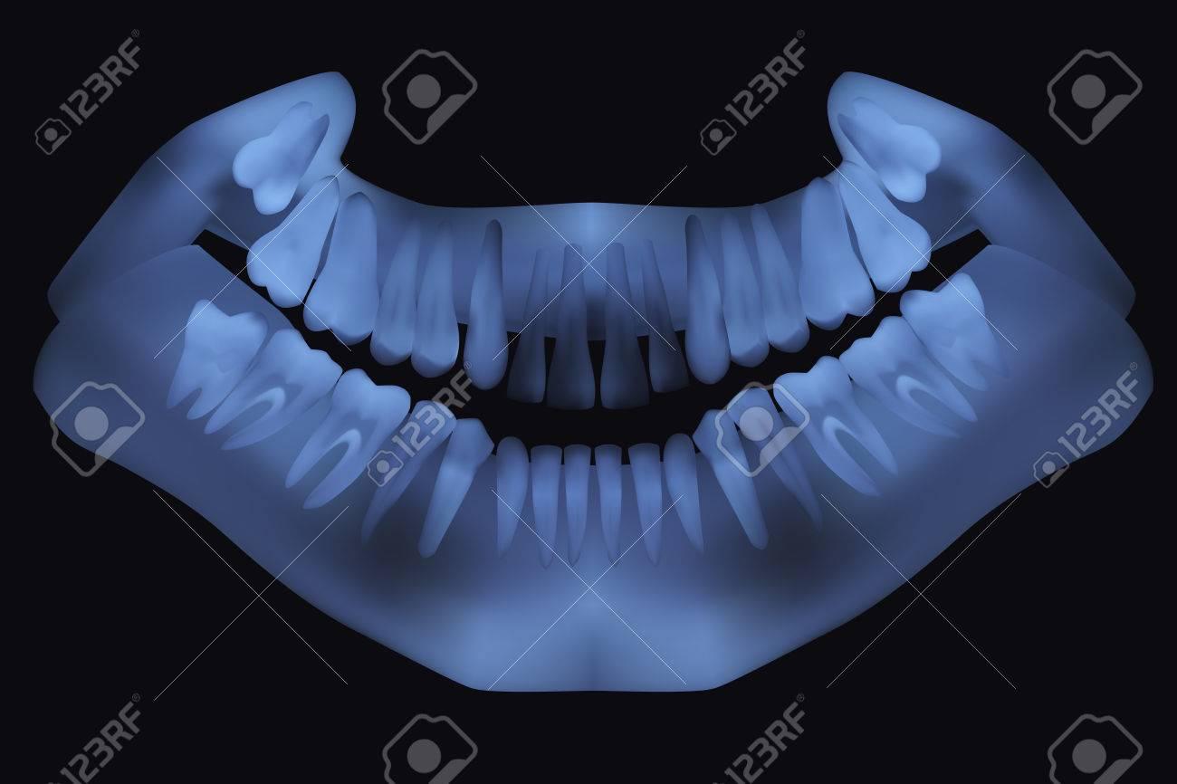 Panoramic Dental X-Ray. Ilustración Vectorial Ilustraciones ...