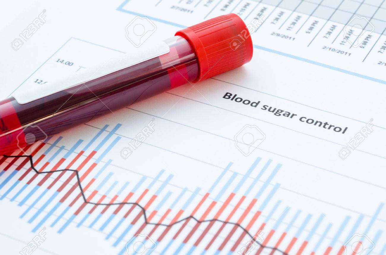 Sample blood for screening diabetic test in blood tube on blood sugar control chart. - 51612157
