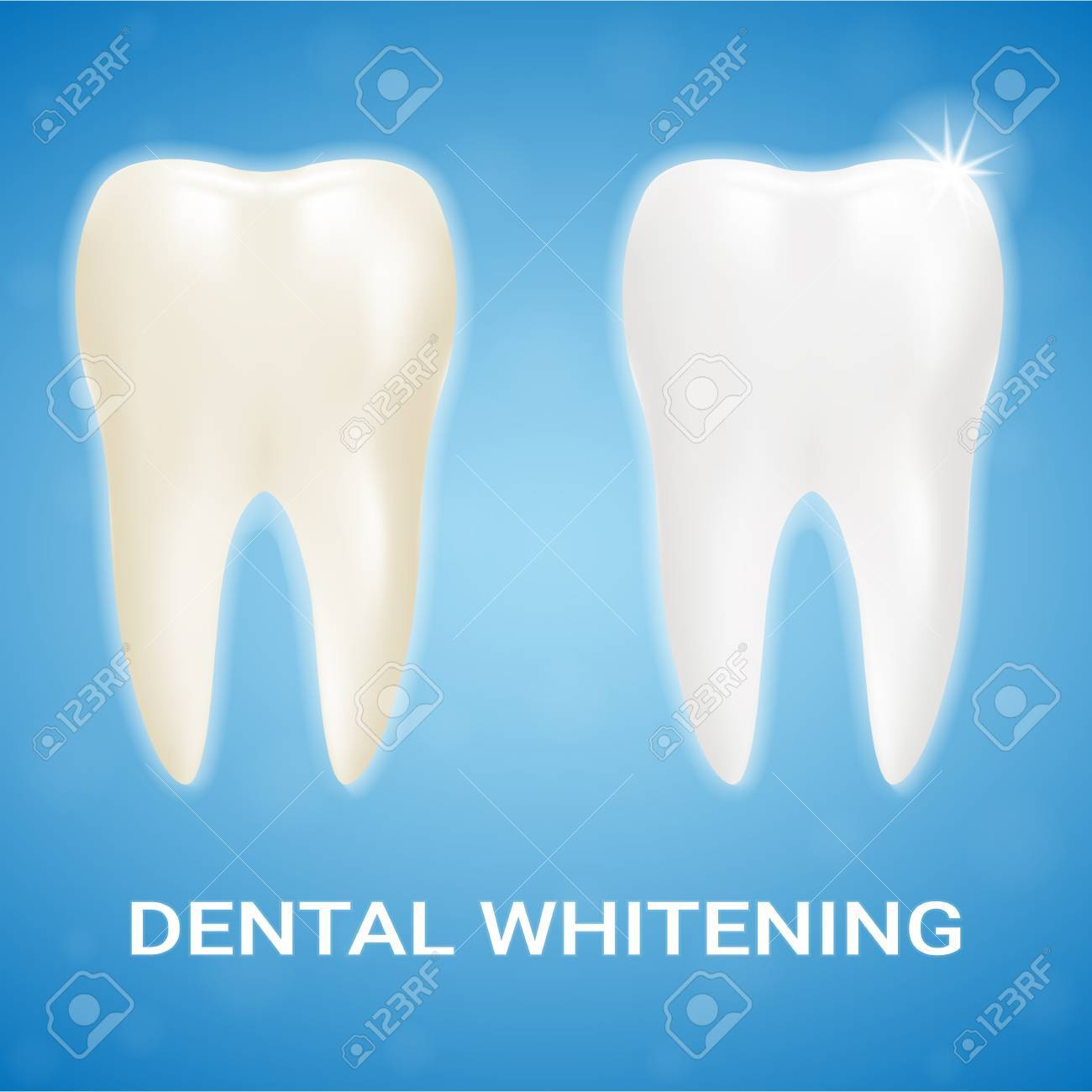 Tooth Veneer Teeth Whitening Whitening Toothpaste Isolated