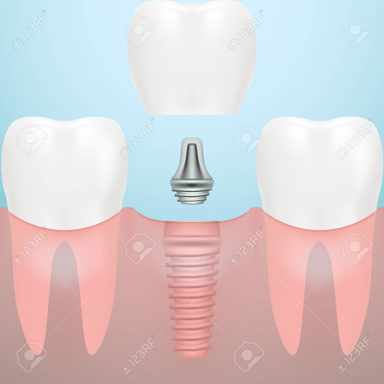 Human Teeth And Dental Implant Isolated On A Background Vector