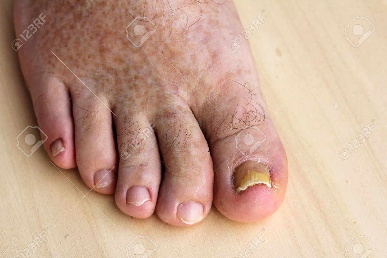 Pathological Changes In The Feet - Nail Fungus On The Toenails ...