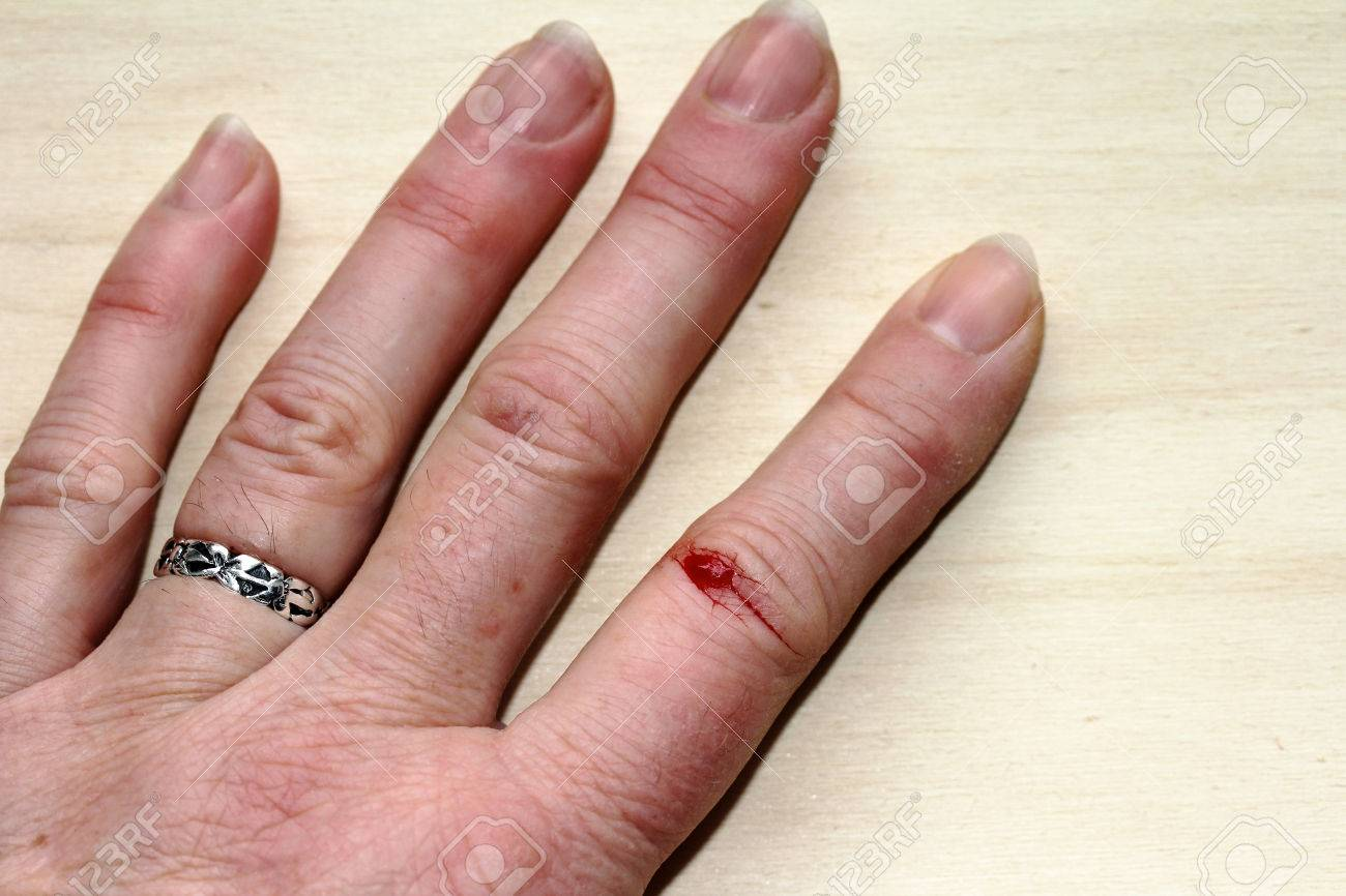 Bloody Injuries To The Finger Of A Woman. A Woman Hurt His Finger ...