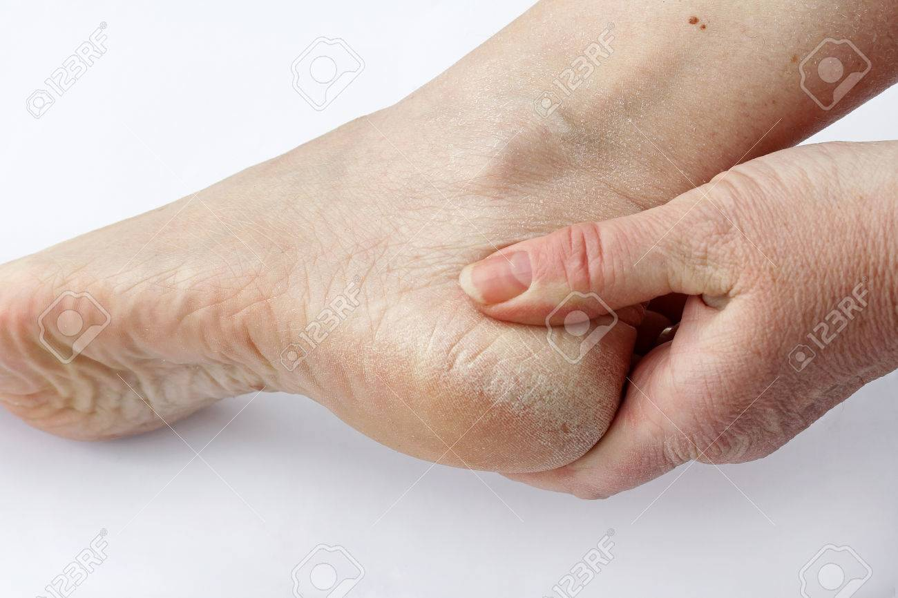 Dry Skin And Calluses On The Feet Stock