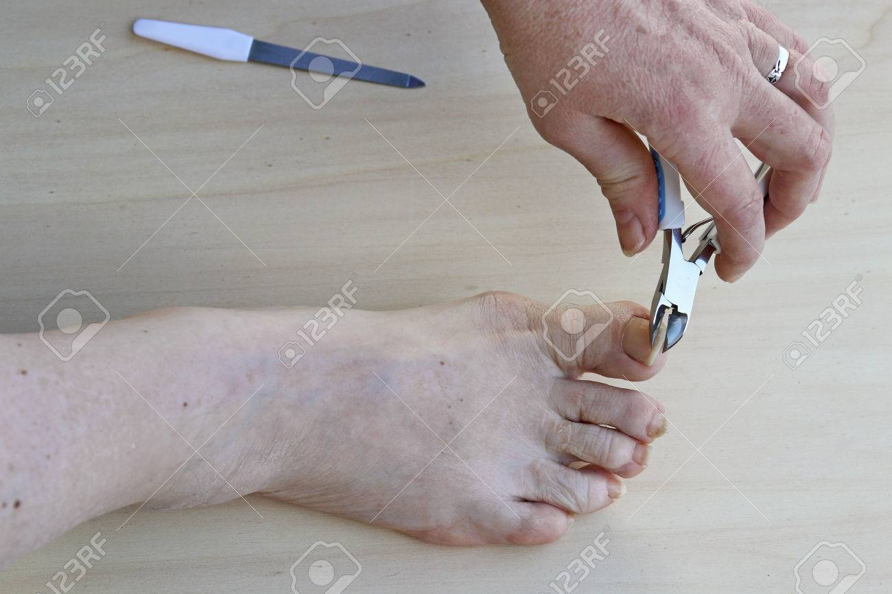 Footcare. Cutting The Toe Nails. Cutting The Toe Nails. Personal ...
