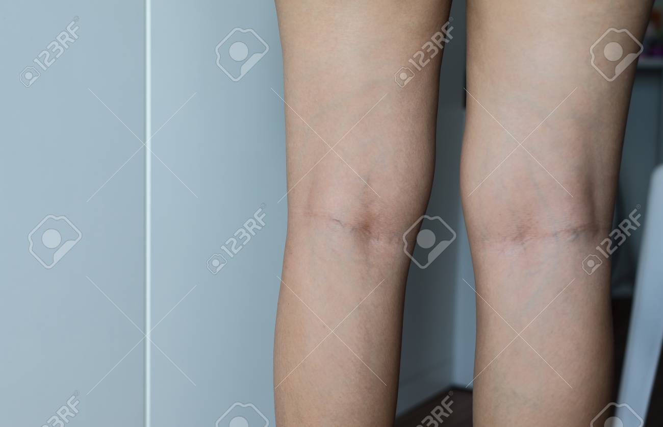 Varicose veins on the womans leg,Normal veins near the skin layer