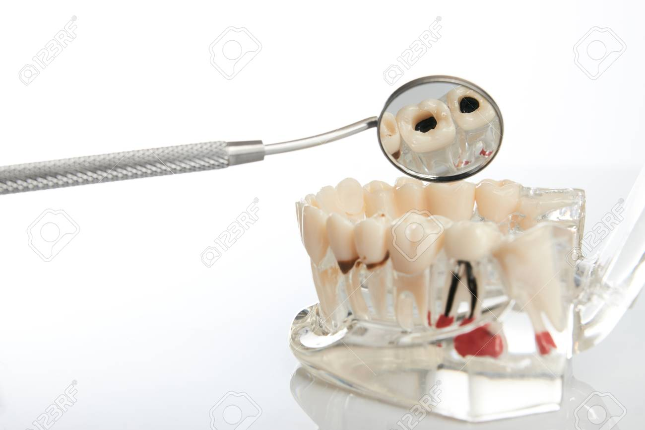 Dental Jaw Model With Teeth Roots Gums Gum Disease Tooth Stock
