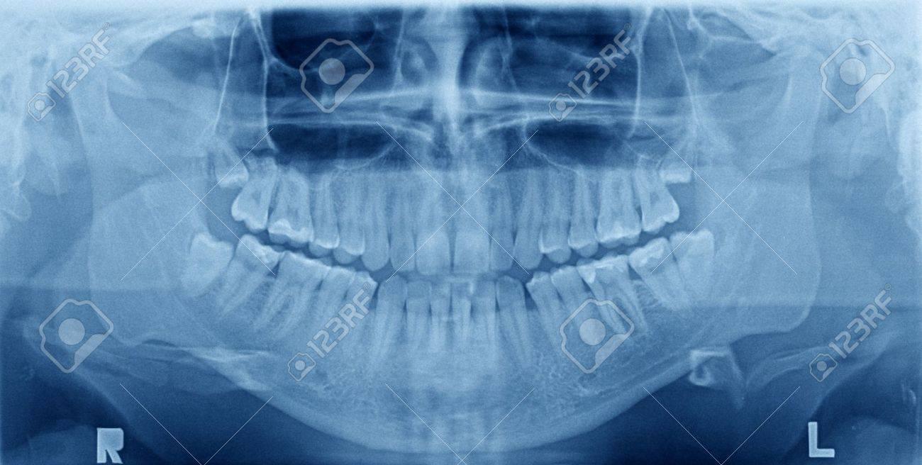 Рентген зубов 65