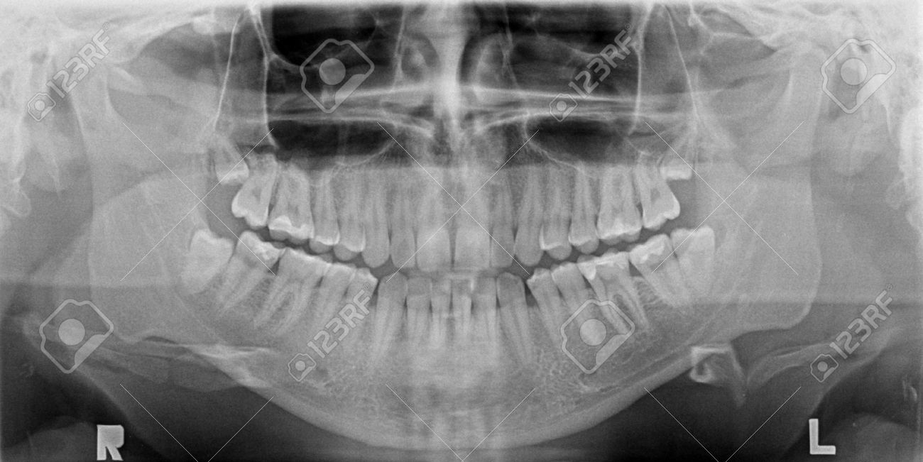 Panoramic x-ray image of teeth. Problem with wisdom tooth. Stock Photo - 18940969