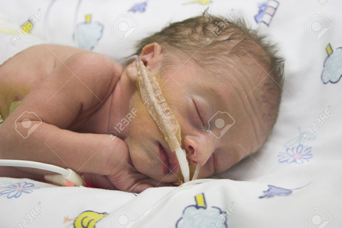 Premature baby boy only one day old Stock Photo - 906194