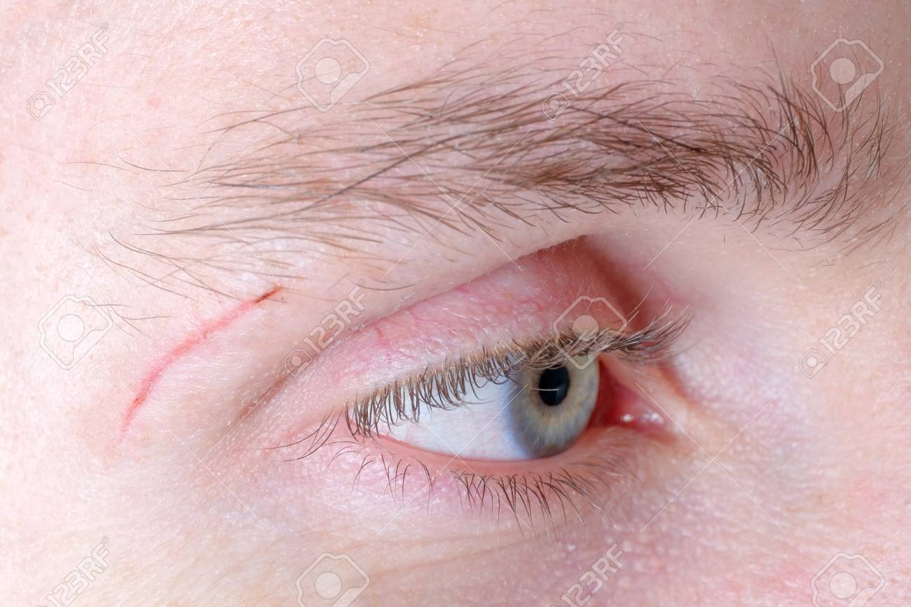 A Scar Near The Eye With An Eyebrow On A Man Of European Appearance Stock Photo Picture And Royalty Free Image Image 113497738