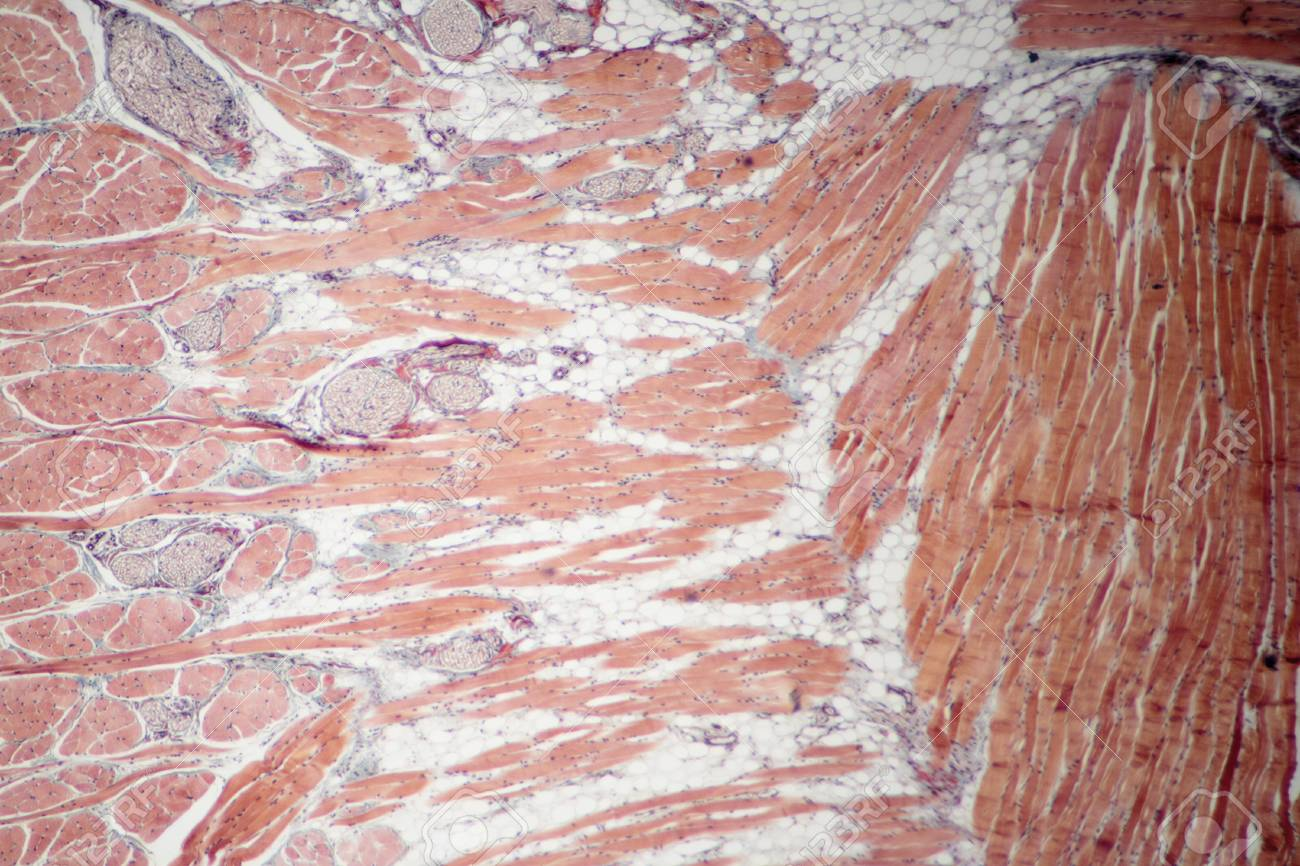 Fixed Slide Cross Section Of Muscle Tissue 100x Microscope View