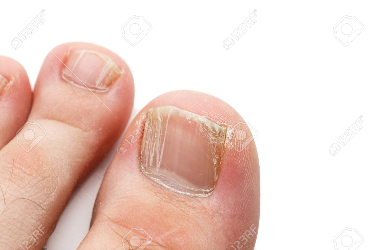 Cracked nails of the toes isolated on white, closeup shot - 122247677