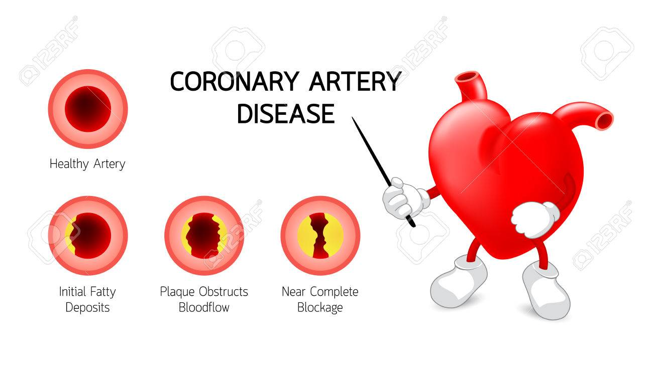 Cute Heart Character With Coronary Artery Disease Infographic