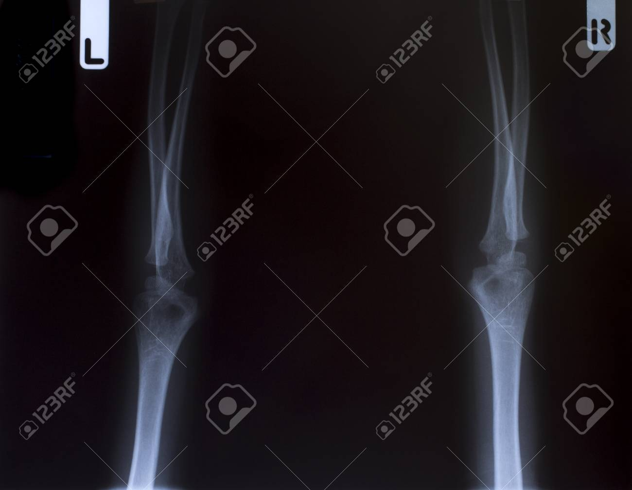 X-Ray Image Of Human Chest for a medical diagnosis Stock Photo - 26483228