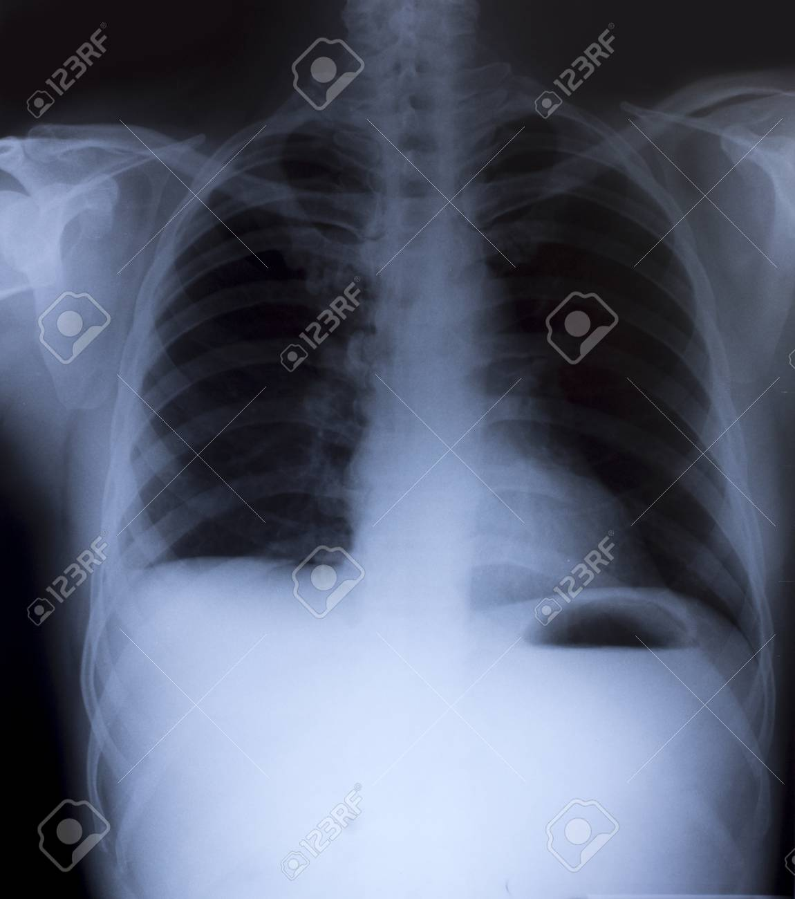 X-Ray Image Of Human Chest for a medical diagnosis Stock Photo - 26483232
