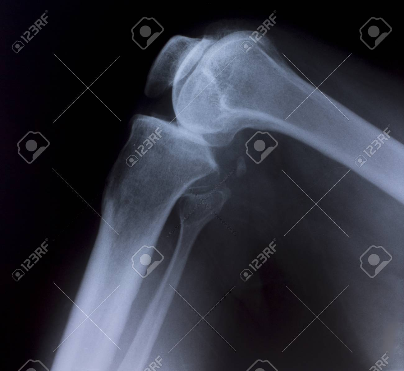 X-Ray Image Of Human Chest for a medical diagnosis Stock Photo - 26483268