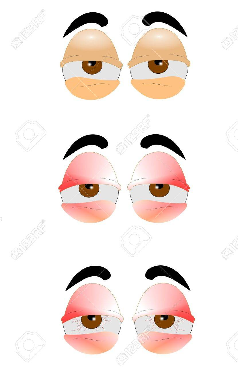 eyes in three styles from bad to worse Stock Vector - 16642675