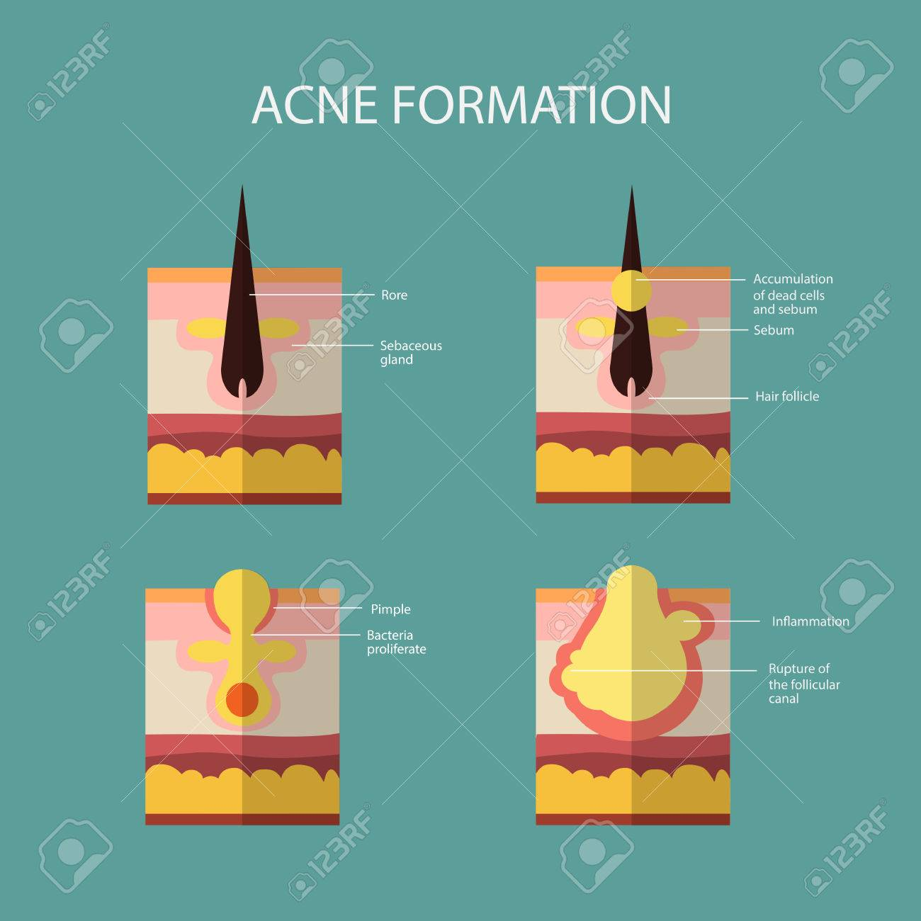 Formation of skin acne or pimple the sebum in the clogged pore formation of skin acne or pimple the sebum in the clogged pore promotes the growth pooptronica
