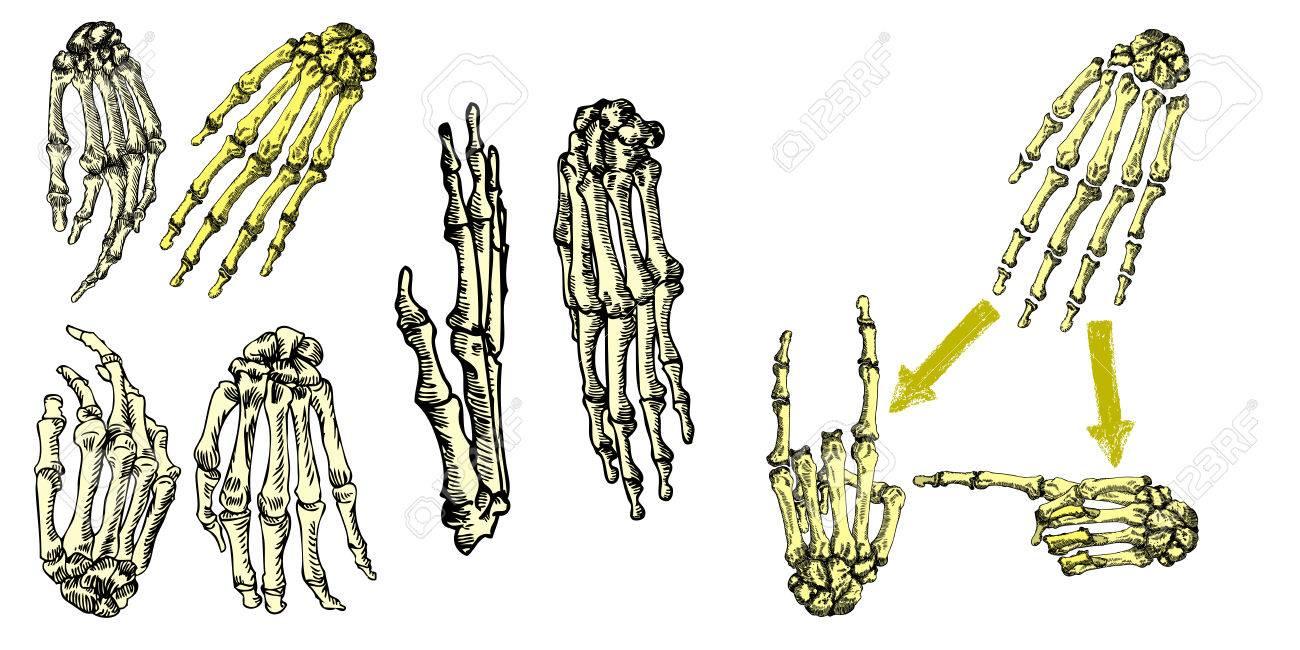Los Huesos Humanos Mano Muñecas Dibujo Conjunto. Conjunto De ...