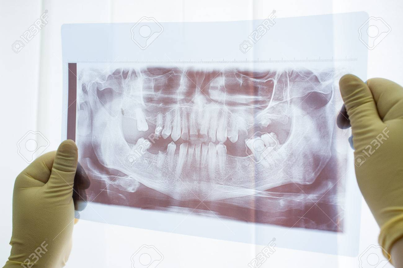 Dental Panorámica De Rayos X De La Mandíbula De Cerca. El Dentista ...