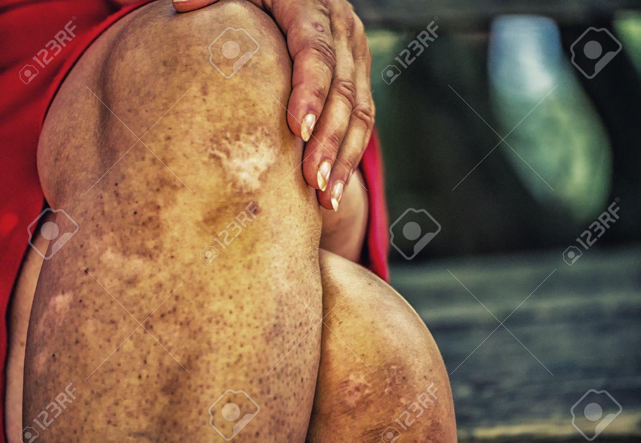 hässliche beine