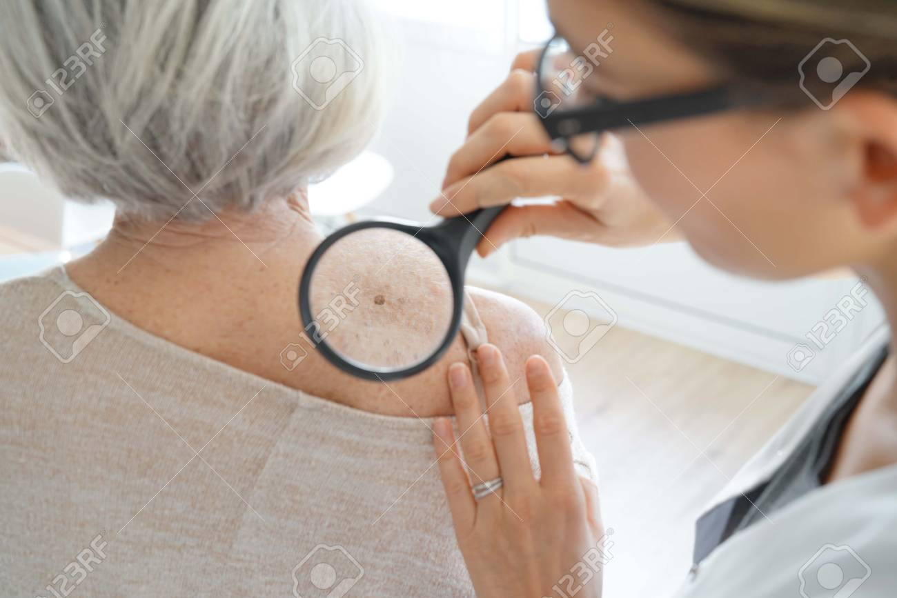 Senior woman getting skin checked by dermatologist - 113818304