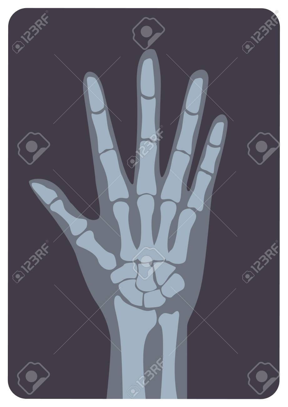 Radiograph, X-radiation picture or X-ray image of hand or palm with wrist and fingers. Modern medical radiography and human skeletal system. Monochrome vector illustration in flat cartoon style. - 103483651