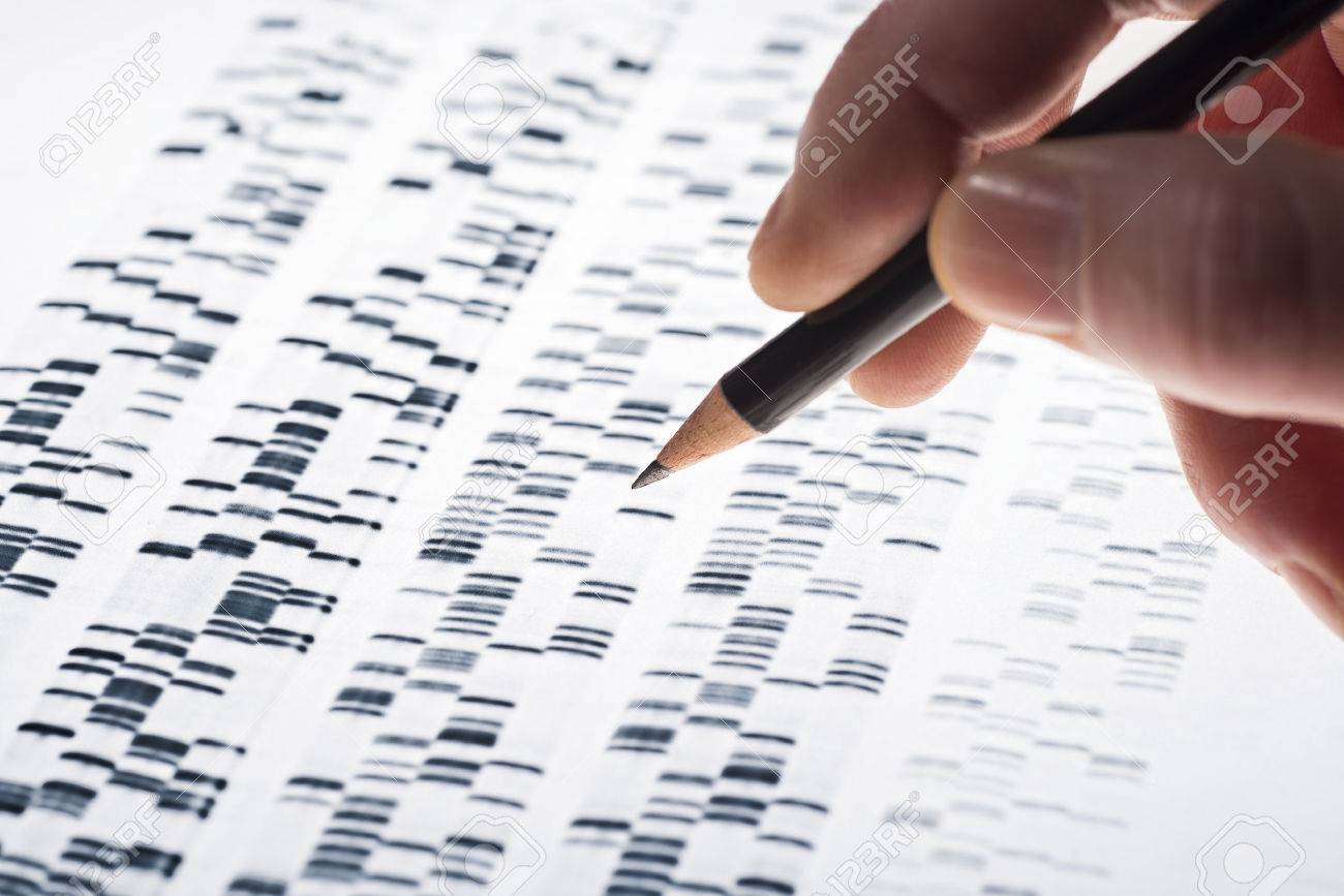 Scientists examined DNA gel that is used in genetics, medicine, biology, pharma research and forensics. - 37239059