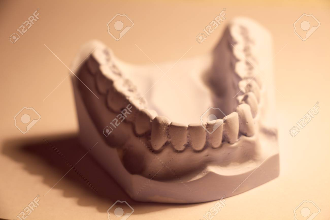 anterior profile view of dental casting Stock Photo - 23294489