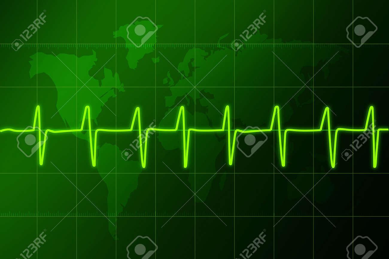 Electronic cardiogramHospital.Ritm sign in.Cardiogram - hospital Stock Photo - 2625736