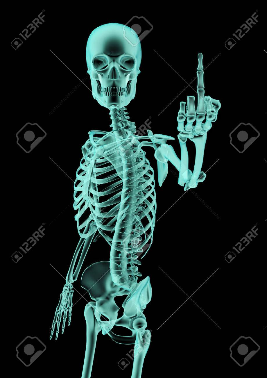 The Finger X-ray, 3D Render Of X-rayed Skeleton Showing Rude.. Stock ...