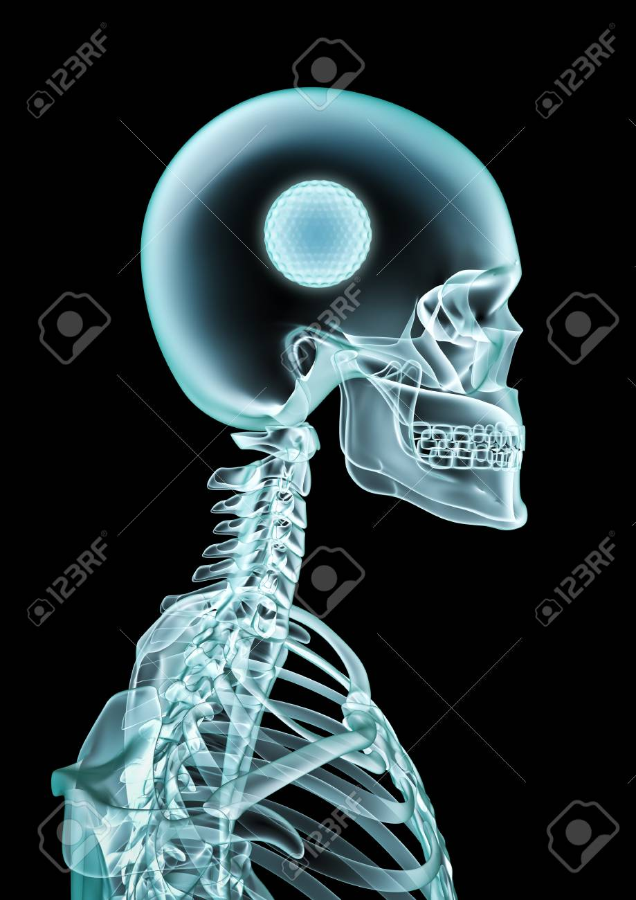 X-ray Golf Fan / 3D Illustration Of Skeleton X-ray Showing Golf ...