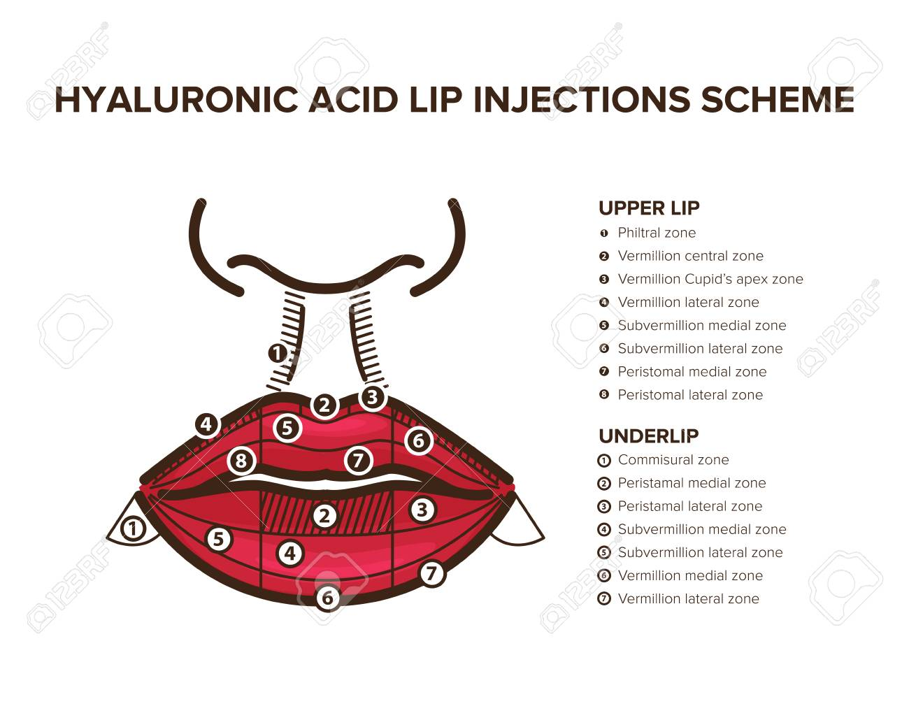 Hyaluronic Acid Filler Lip Injections Lip Anatomy Illustration