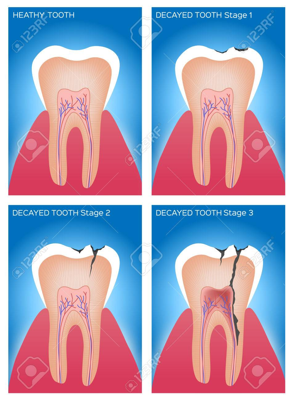 Zahn Und Zahnfleisch Anatomie Und Schäden Lizenzfrei Nutzbare ...