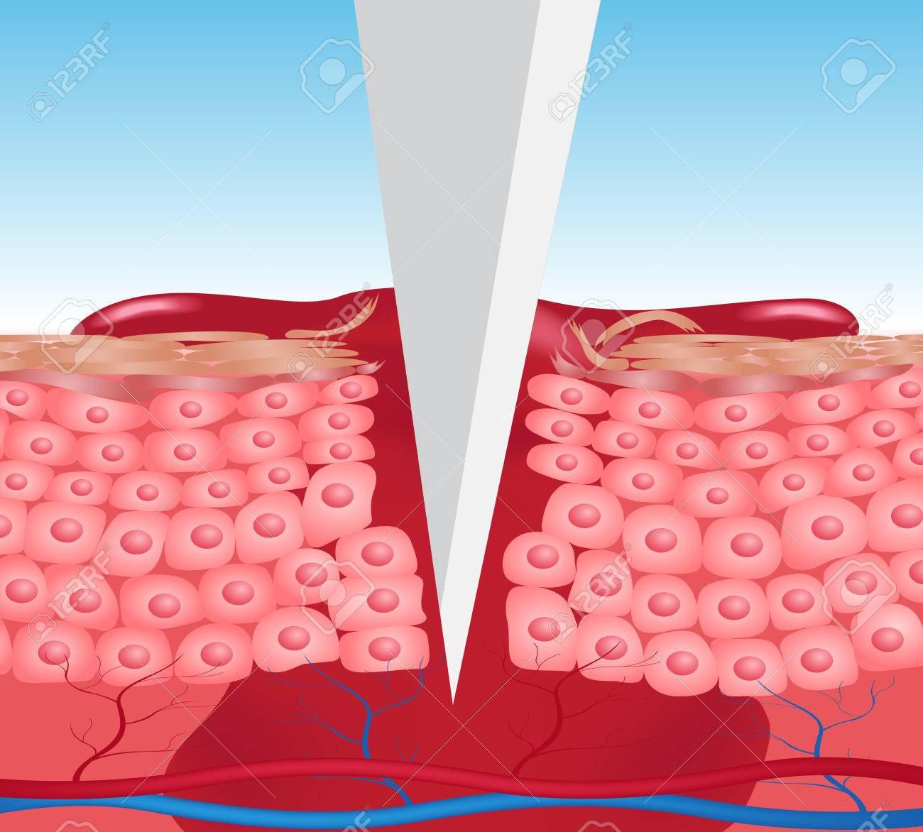 wound skin vector graphic . the blood come out of wound , add cutter version - 60439069