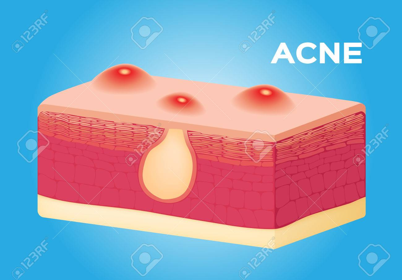 Acne Vector On Skin , Anatomy Royalty Free Cliparts, Vectors, And ...