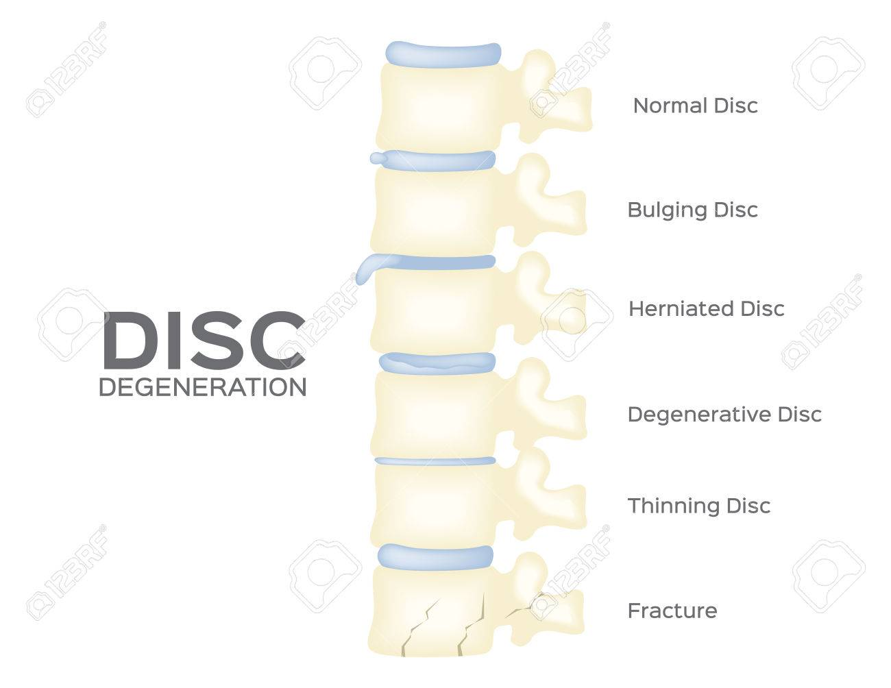 Spine Disc Degeneration Vector . Back Bone . Anatomy Royalty Free ...