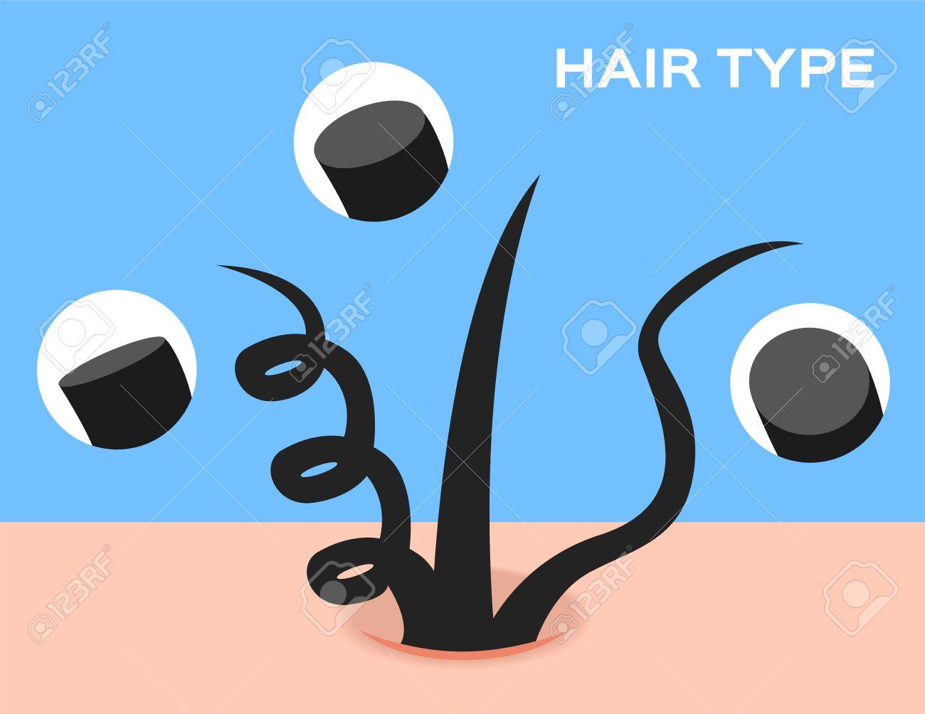 Haartypen. Querschnitt Durch Verschiedene Haar Textur. Gerade ...