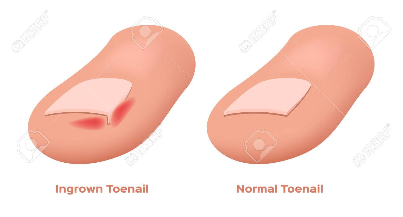 Ingrown Toenail Vector Royalty Free Cliparts, Vectors, And Stock ...