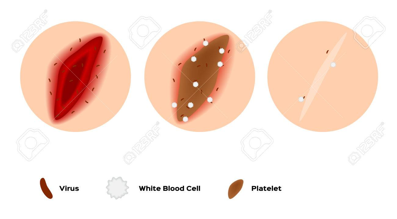 infographic of how the wound heal by platelet and white blood