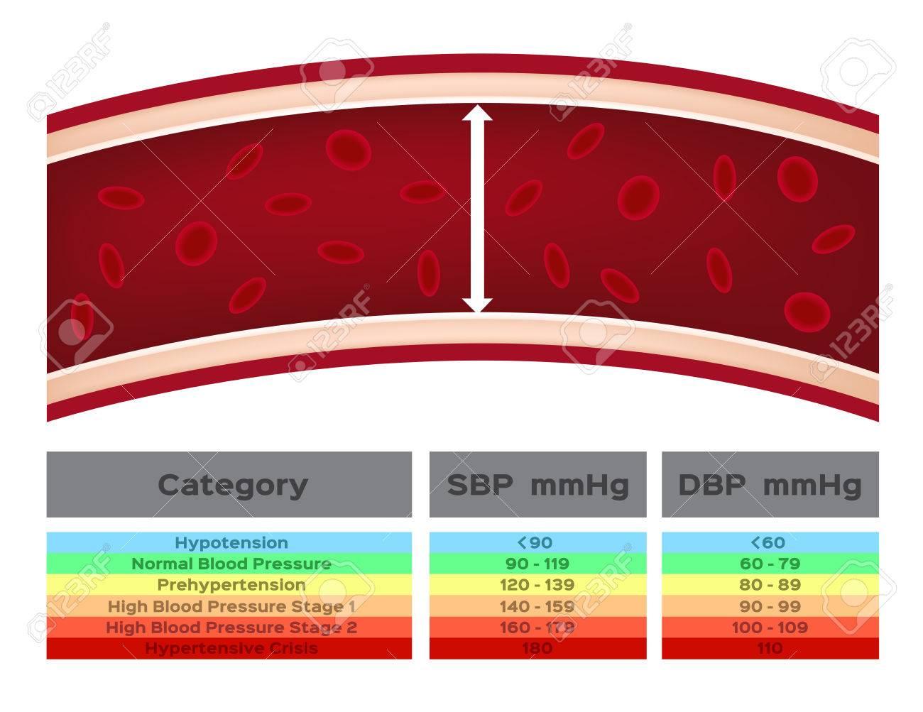 Presión arterial 140 60 es normal