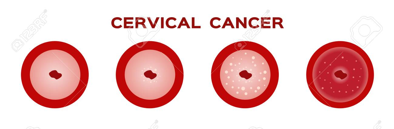 Cervical Cancer In Women Uterus Anatomy Royalty Free Cliparts