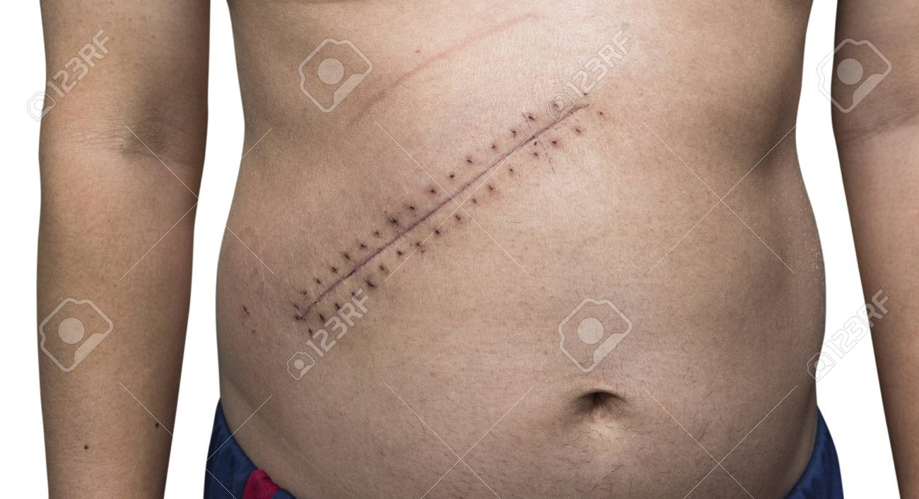 the scar after max stitched up wound after mole removal surgery