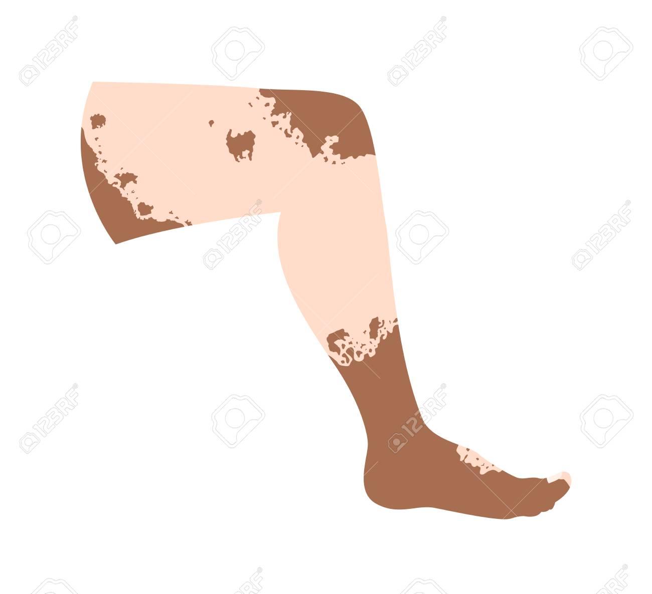 Vitiligo On Skin Layer Anatomy Vector Royalty Free Cliparts, Vectors ...
